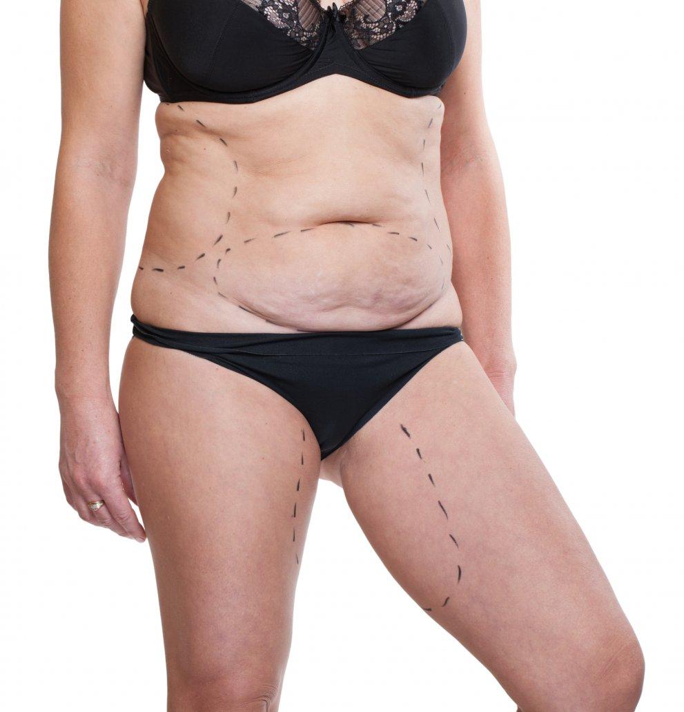 perdita di peso della pelle del seno